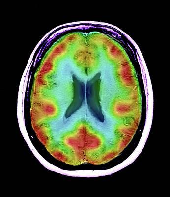 Normal Brain Blood Flow Print by Zephyr