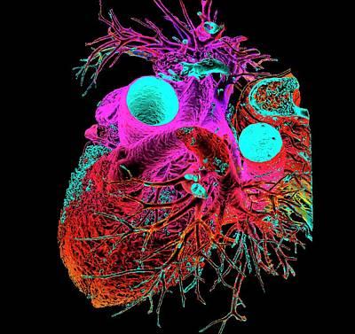 Normal Human Heart Print by K H Fung