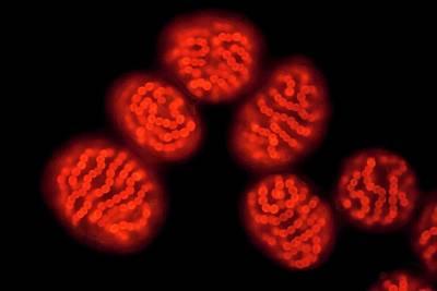 Nostoc Pruniforme Cyanobacteria Print by Gerd Guenther