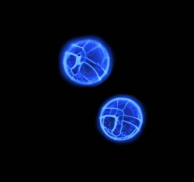 Algal Photograph - Peridinium Dinoflagellates by Gerd Guenther