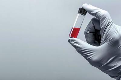Person Holding Virology Test Tube Print by Wladimir Bulgar