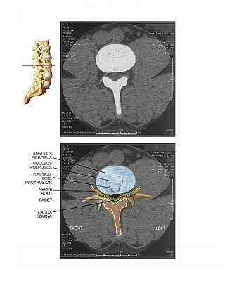 Disc Photograph - Protruding Disc In The Lumbar Spine by John T. Alesi