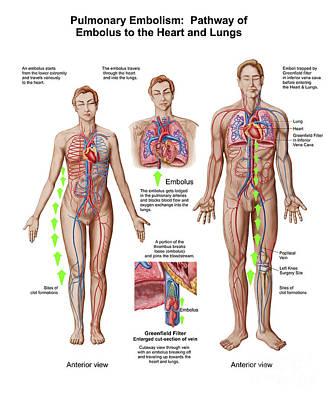 Pulmonary Embolism, Pathway Of Embolus Print by Stocktrek Images