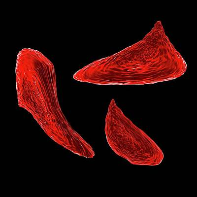 Disorder Photograph - Sickle Cell Anaemia by Mehau Kulyk