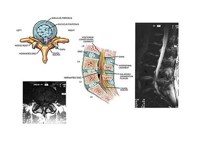 Mri Photograph - Slipped Disc In The Lumbar Spine by John T. Alesi