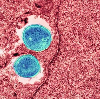 Staphylococcus Aureus Bacteria Print by Ami Images