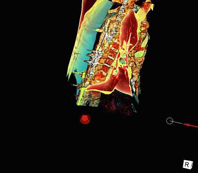 3-dimensional Photograph - Sunken Chest by D & L Graphics