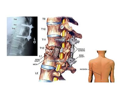 Surgery To Fuse The Thoracic Spine Print by John T. Alesi