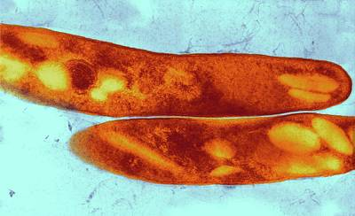 Tuberculosis Bacteria Print by Ami Images/elizabeth Libby White