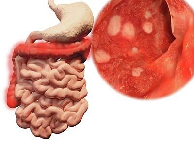 Endoscopy Photograph - Ulcerative Colitis by Juan Gaertner