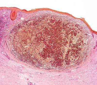 Cancer Photograph - Skin Cancer by Steve Gschmeissner