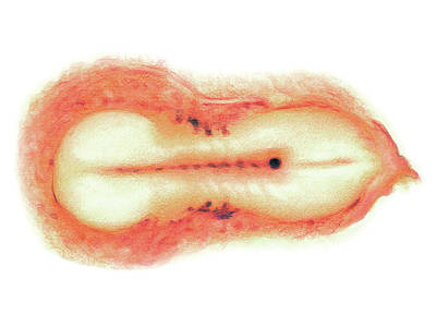 Embryo Photograph - Embryo by Asklepios Medical Atlas