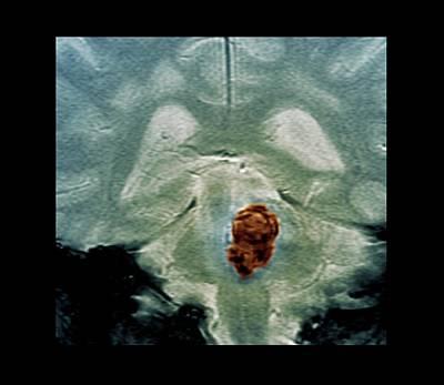 60s Photograph - Brain Haemorrhage by Zephyr