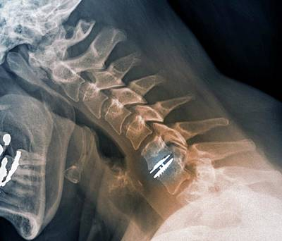 Replacing Photograph - Spinal Disc Implant by Zephyr