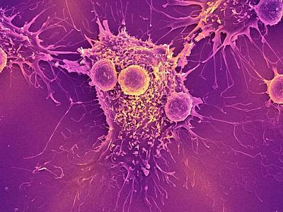 Cancer Cell And T Lymphocytes Print by Steve Gschmeissner