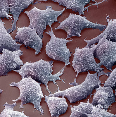 Colourized Photograph - Human Fibroblast Cells by David M. Phillips