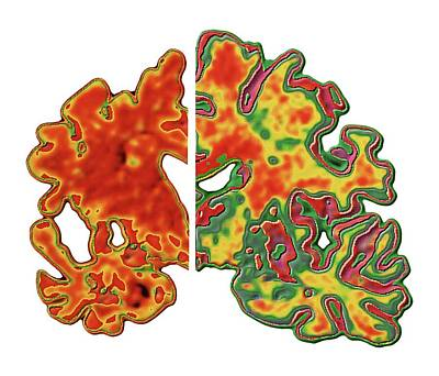 Alzheimers Photograph - Alzheimer's Brain by Alfred Pasieka