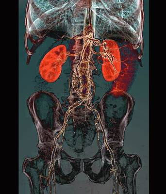 Aortic Atheromas Print by Zephyr