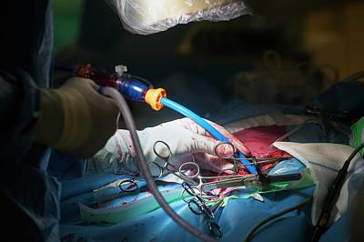 Heart Disease Photograph - Cardiac Catheterization by Arno Massee