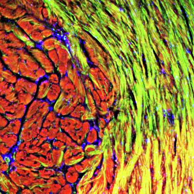 Cardiac Muscle Print by R. Bick, B. Poindexter, Ut Medical School