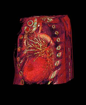 Coronary Artery Bypass Graft Print by Anders Persson, Cmiv