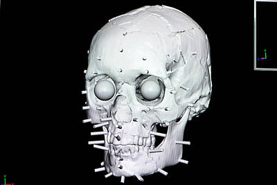 Reconstructed Photograph - Digital Forensic Facial Reconstruction by Louise Murray