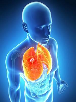 Human Internal Organ Photograph - Human Lung Cancer by Sebastian Kaulitzki