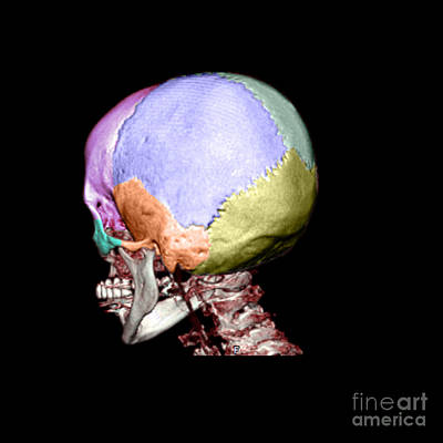 Human Skull Print by Living Art Enterprises