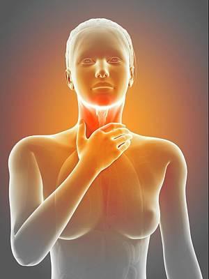 Inflammation Photograph - Inflammation Of The Larynx by Sebastian Kaulitzki