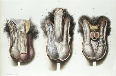 1839 Photograph - Male Reproductive System by Science Photo Library
