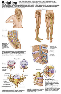 Peroneal Nerves Digital Art - Medical Chart Showing The Signs by Stocktrek Images