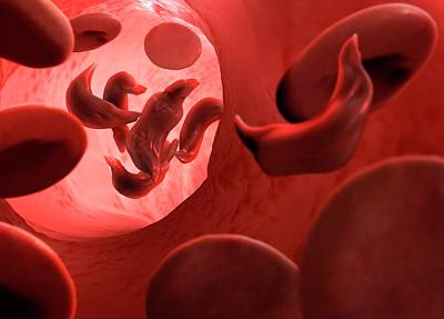 Sickle Cell Anaemia Print by Tim Vernon
