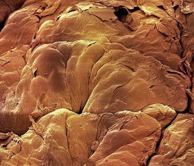 Skin Mole Print by Steve Gschmeissner