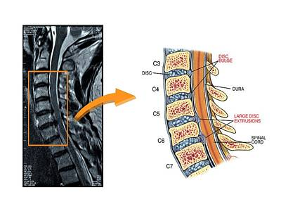Extrusion Photograph - Slipped Discs In The Cervical Spine by John T. Alesi