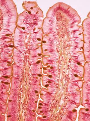 Small Intestine Print by Steve Gschmeissner