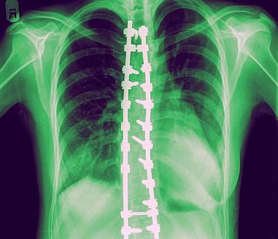Fusion Photograph - Spinal Fusion by Photostock-israel