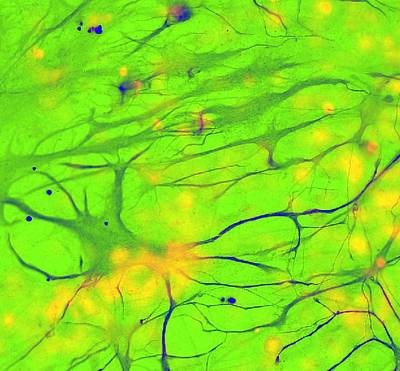 Stem Cell-derived Astrocyte Brain Cells Print by Science Photo Library