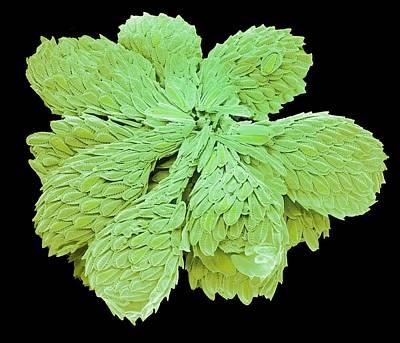 Synura Golden-brown Alga. Print by Steve Gschmeissner