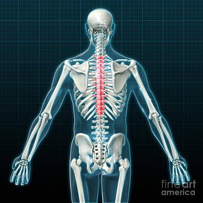 Anatomic Photograph - Thoracic Vertebrae, Illustration by Evan Oto