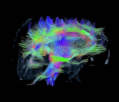 Human Brain Photograph - White Matter Fibres by Zephyr