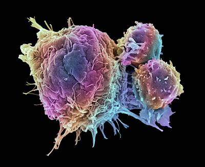 Cancer Photograph - Cancer Cell And T Lymphocytes by Steve Gschmeissner