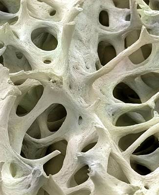 Bone Tissue Print by Steve Gschmeissner