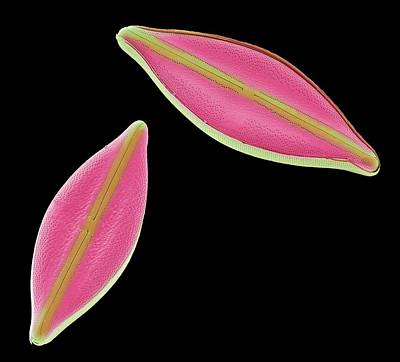Diatoms Print by Steve Gschmeissner