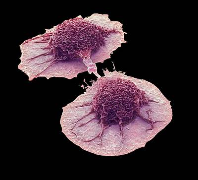 Cancer Photograph - Dividing Lung Cancer Cells by Steve Gschmeissner