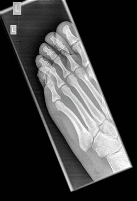 Radiograph Photograph - Intermediate Phalanx X-ray by Photostock-israel