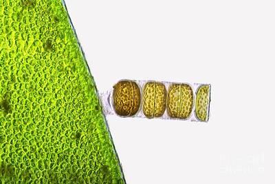 Melosira Sp Diatoms, Light Micrograph Print by Frank Fox