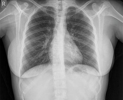 Normal Healthy Chest X-ray Print by Photostock-israel