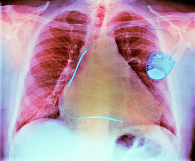 Heart Disease Photograph - Pacemaker In Heart Disease by Dr P. Marazzi