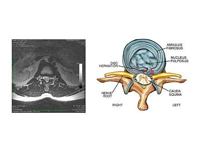 Slipped Disc In The Lumbar Spine Print by John T. Alesi