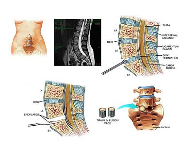 Disc Photograph - Surgery To Fuse The Lumbar Spine by John T. Alesi
